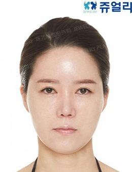 面部抗初老该怎么整形,韩国珠儿丽面部提升手术效果还不错!