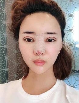 在韩国歌柔飞整形医院动了眼鼻、做了埋线和填充后,如愿变美女!