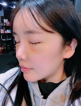 腿粗,黑眼圈的我在韩国歌柔飞做了眼底脂肪重排+大腿吸脂+全脸脂肪填充_术前