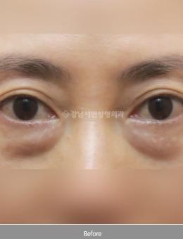 韩国江南首延去眼袋案例前后治疗图_术前