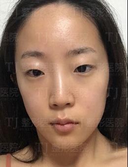 韩国TJ整形医院双眼皮+开眼角+提肌手术案例分享