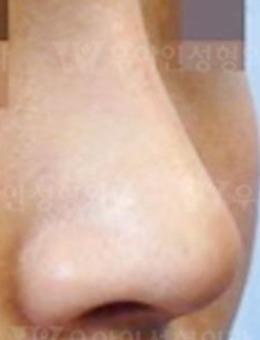 韩国优雅人整形外科硅胶+耳软骨隆鼻真人案例!