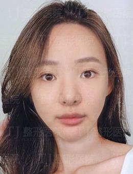 韩国tj整形外科真人鼻部综合整形手术前后对比照片