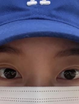 韩国yellow整形外科双眼皮修复真人案例对比图!