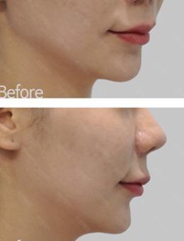 韩国丽妍K整形皮肤科面部提升真人案例对比!