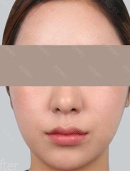 韩国丽妍K整形皮肤科面部脂肪填充真人案例对比!
