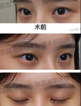 韩国来丽laree整形医院外眼角下拉手术图片分享,效果超自然!