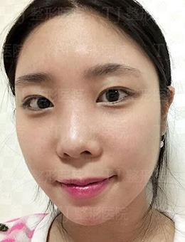 韩国TJ整形眼鼻综合改善案例详情,矫正眼型也能收获满意效果!