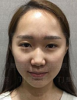 微调眼型会有怎样改善,看看韩国TJ医院真人改善案例!