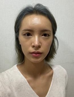 全切双眼皮提肌失败还能修复!韩国歌柔飞做该手术只要2万+!