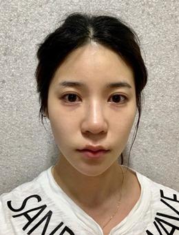 韩国歌柔飞鼻综合修复案例分享,术后三周就能恢复自然好看