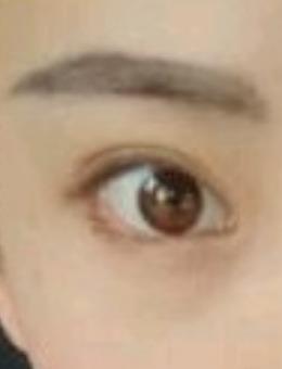 成都美极整形全切双眼皮+后眼角下至案例图