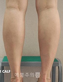 韩国明洞丽芬聚PPEUM医院瘦小腿案例前后对比