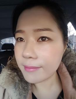 韩国陈整形外科自体真皮再生术治疗面部皱纹案例!