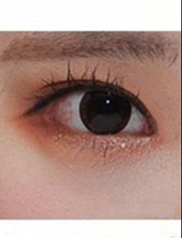 韩国来丽整形医院外眼角下拉手术图片_术后