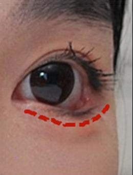 韩国来丽laree下眼睑下拉手术前后图片对比