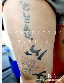 科琳挞图激光美容医院腿部激光洗纹身前后对比照片_术前