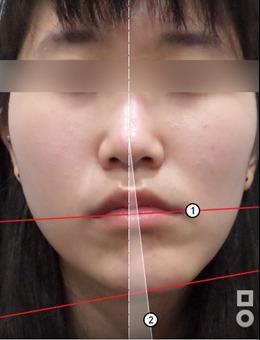 韩国美尔韩医院脸一大一小真人矫正案例图_术前