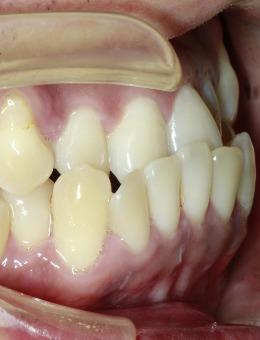 成都成华极光口腔牙齿矫正案例合集_术前