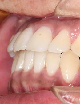 成都成华极光口腔牙齿矫正案例合集_术后