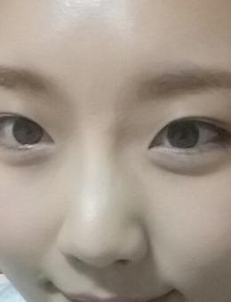 韩国陈整形J自体真皮再生术治疗眉间疤痕前后对比图_术后