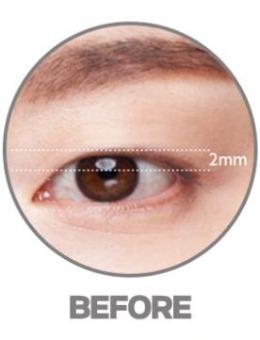 韩国大眼睛整形医院双眼皮案例