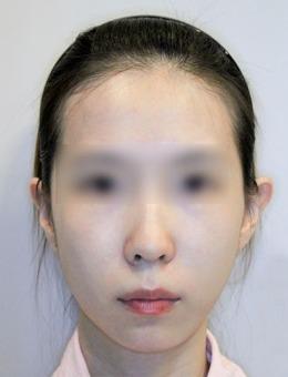 韩国V-fix面部抗衰老提升案例
