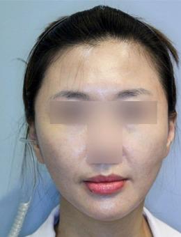 韩国大眼睛整形医院PDO埋线提升案例