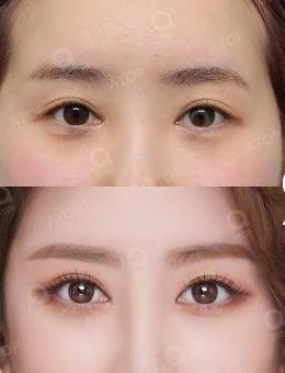 韩国爱她整形医院双眼皮+隆鼻综合整形案例