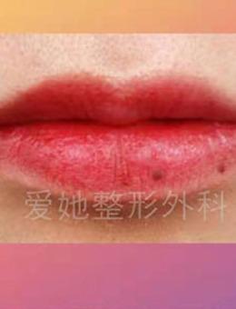 韩国爱她整形微笑M唇手术案例