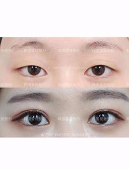 韩国爱她整形医院眼型调整前后对比案例