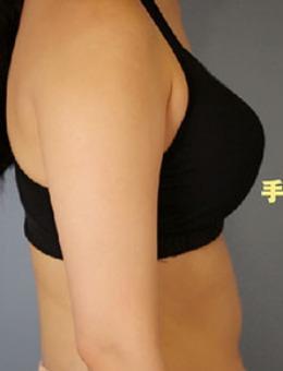 韩国Ucanb胳膊吸脂手术案例前后对比照