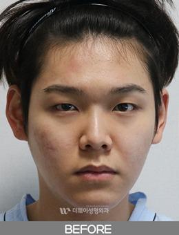 韩国TheWAY整形医院男生眼鼻综合前后对比_术前