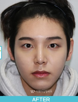 韩国TheWAY整形医院男生眼鼻综合前后对比_术后