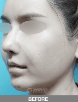 韩国歌娜整形?外科迷你拉皮手术改善案例