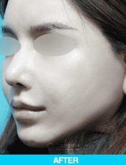 韩国歌娜整形外科迷你拉皮手术改善案例