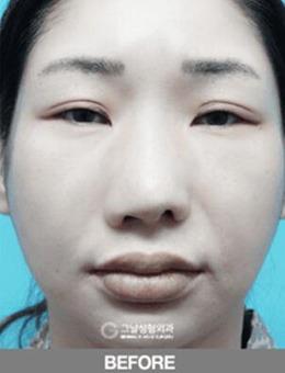 韩国歌娜整形做鼻修复怎么样?真人案例看前后差距对比!_术前
