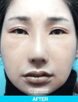 韩国歌娜整形做鼻修复怎么样?真人案例看前后差距对比!_术后