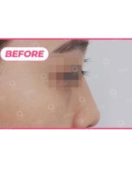 韩国爱她整形医院鼻综合改善案例对比真实效果展示!_术前