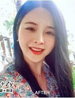 韩国齐娥牙科双鄂手术+颧骨手术案例照