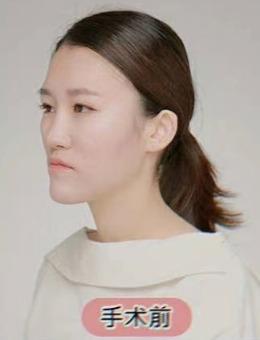 韩国齐娥牙科轮廓三件套治疗前后对比照片
