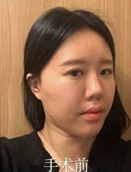 韩国双鄂手术+轮廓三件套治疗前后对比照片