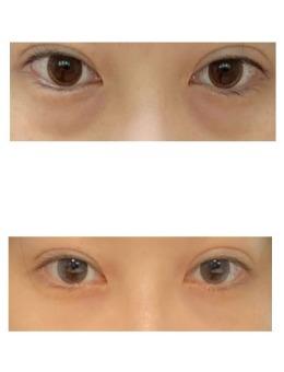 韩国大眼睛整形外科去眼袋案例照_术前