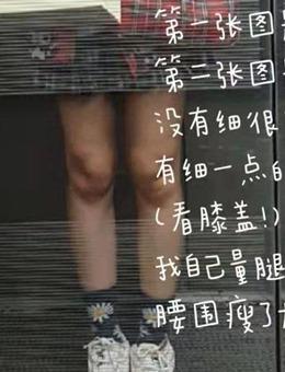 韩国美尔韩医院粉红丸减肥药食用日记