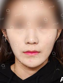 韩国爱她?整形医院狐狸V脸术前后对比案例图