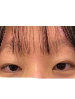 双眼皮+上眼提?肌手术案例图_术前