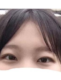 双眼皮+上眼提肌手术?案例图_术后