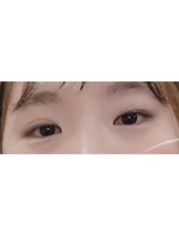 眼部矫正+开眼角+眼底脂肪?重新排列案例_术前