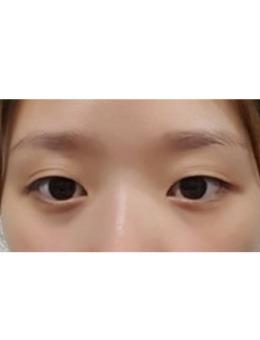 韩国埋线双眼?皮手术前后对比案例_术前