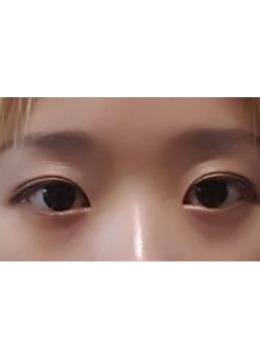 韩国埋线双眼皮手术前后对比案例_术后
